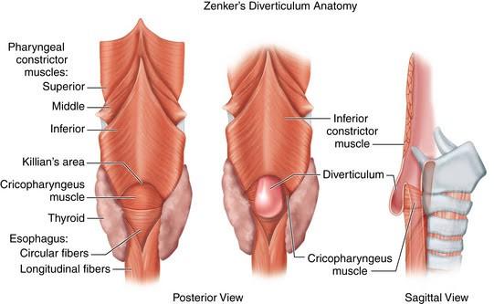 zenkers-diverticulum-anatomy-1